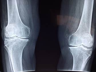 ランニング 怪我 足の痛み