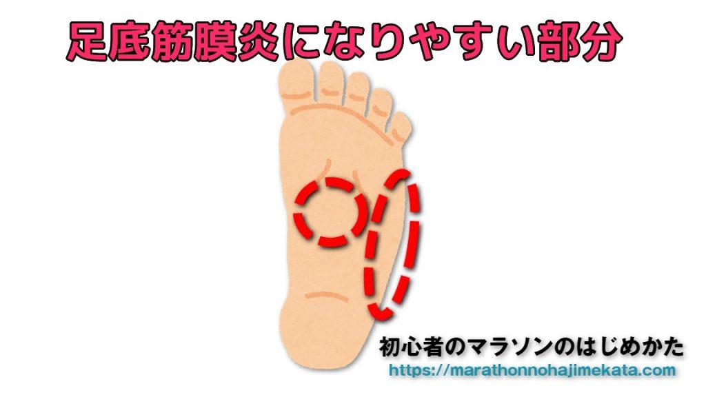 痛み 外側 足 の 裏